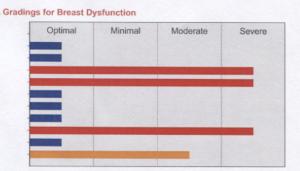 Gradings for Breast Dysfunction